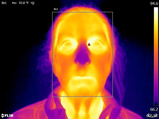 FLIR body temperature scan corner of eye
