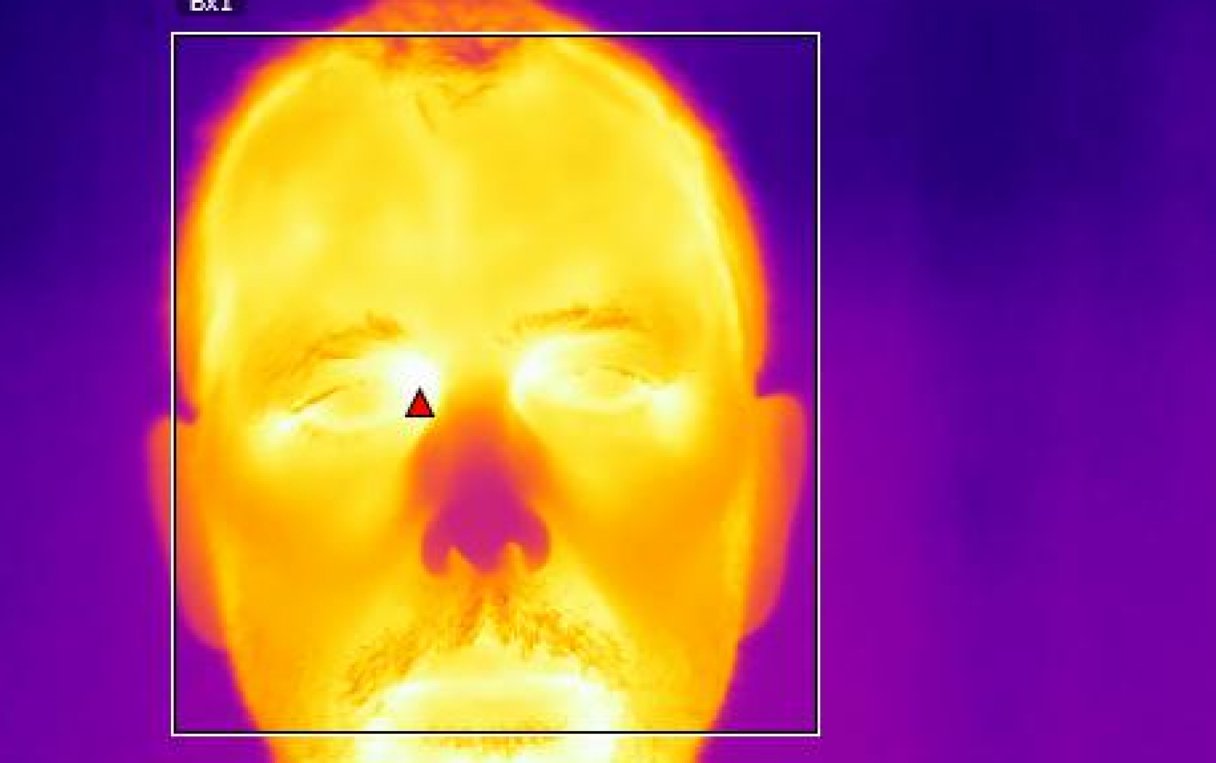 Image of Thermal Body Temperature Scanning by Infrared Diagnostic in Sudbury, Massachusetts